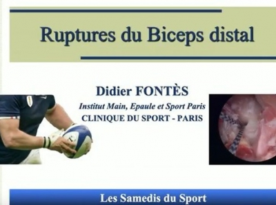 Communication sur la rupture du Biceps distal